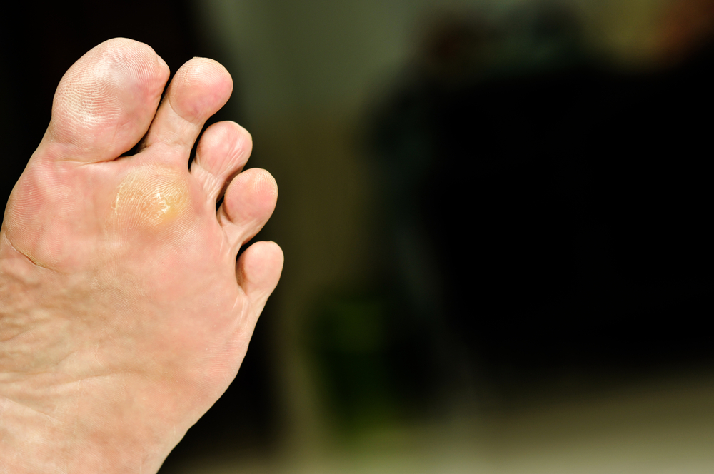 Where Does A Plantar Wart Develop